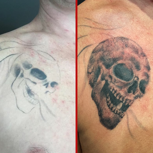 skull coverup chest tattoo colchester essex